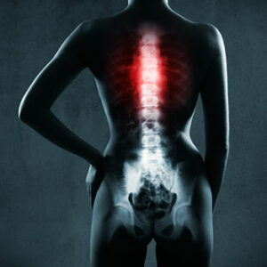 spine damage from accident